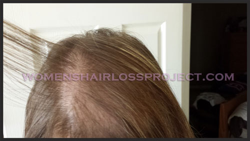 Hair Loss Concealer Women S Hair Loss Project