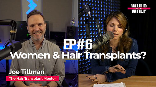 Joe Tillman - Women and Hair Transplants